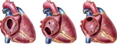 Что относится к врожденным порокам сердца