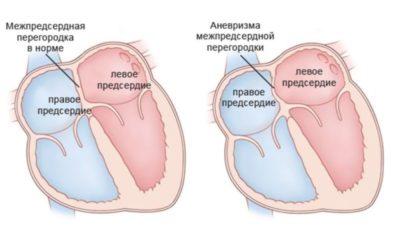 Что такое дегенеративный порок сердца